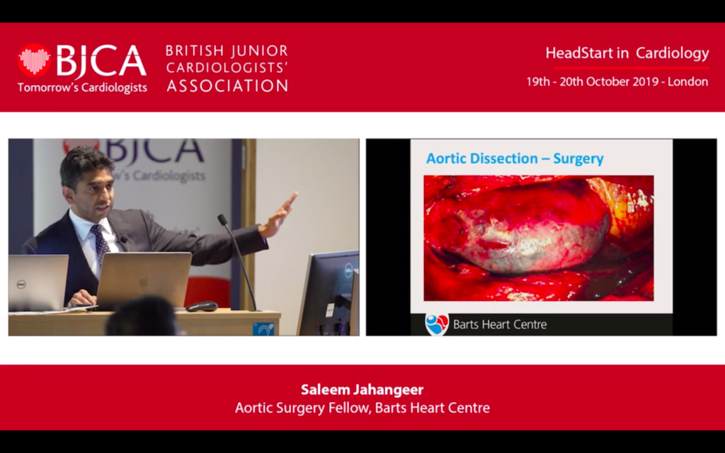 The investigation and management of Aortic dissection