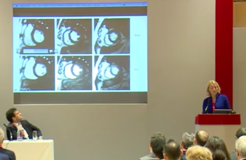 Cardiac MRI is the best test for ischaemia- Dr Charlotte Manisty