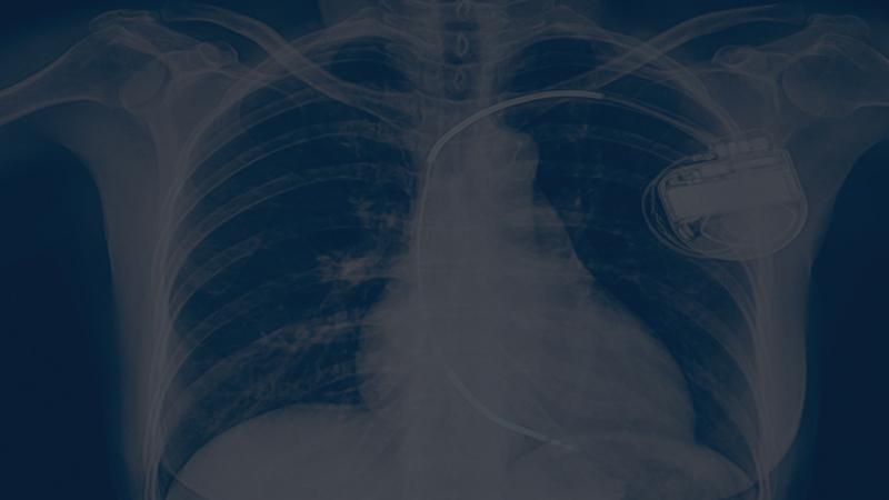 Arrhythmia & Devices