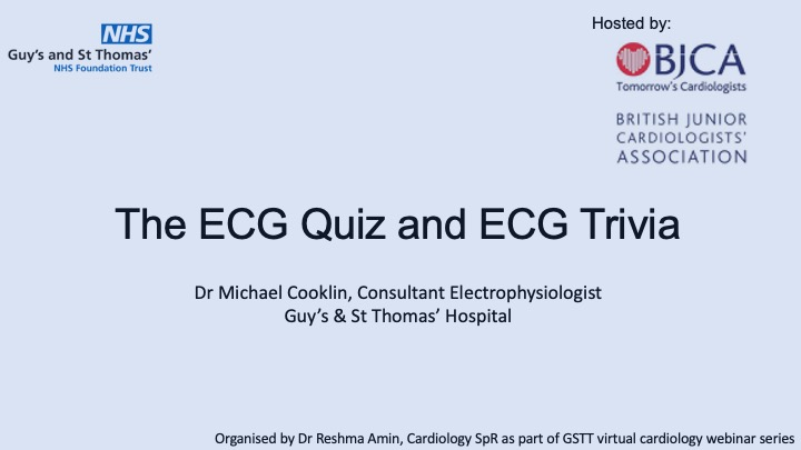 ECG Quiz and Trivia- Dr Mike Cooklin