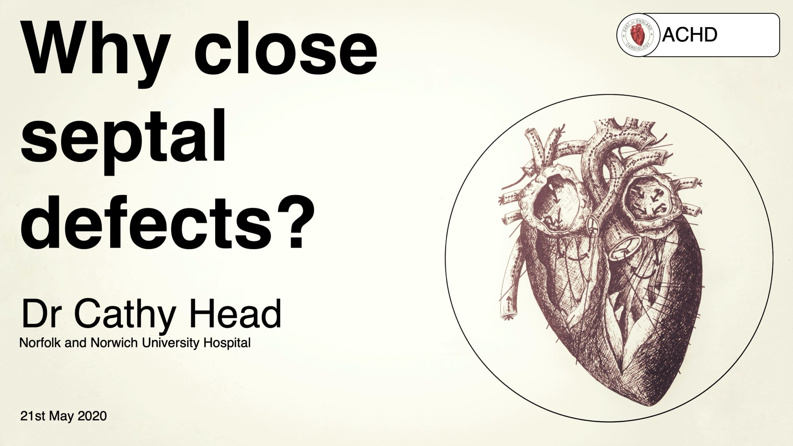 Why close septal defects?