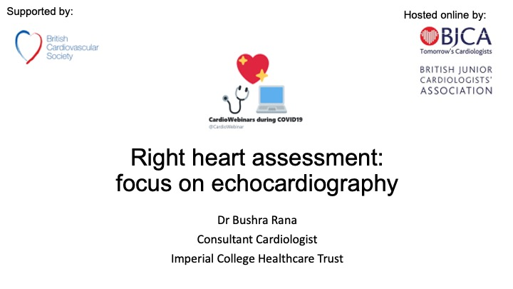 Right heart assessment: a focus on echocardiography