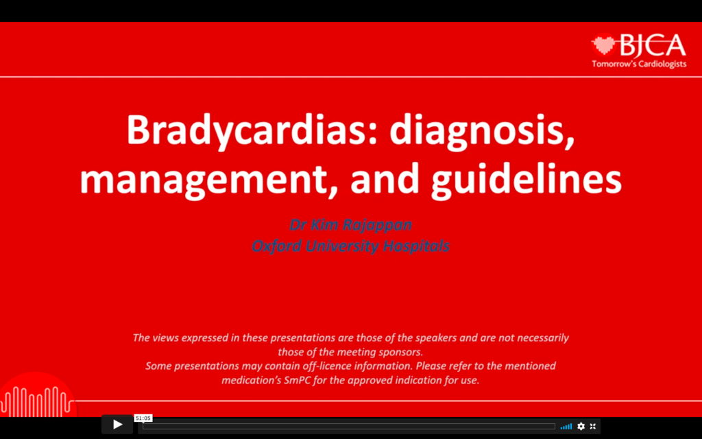 EEGC CONTENT: Bradycardias diagnosis, management, and guidelines