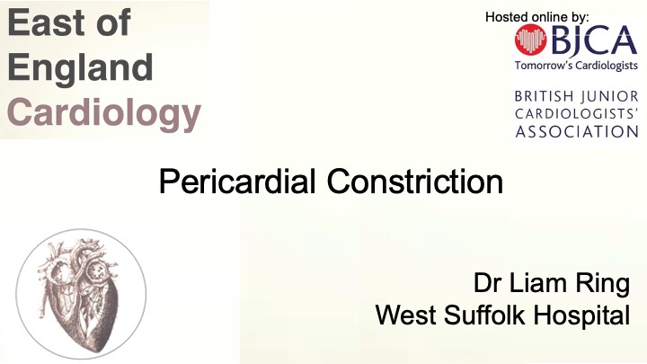 Pericardial Constriction