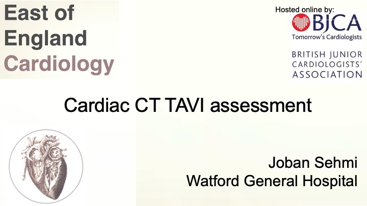 Cardiac CT – TAVI assessment