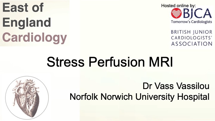 Stress Perfusion cardiac MRI