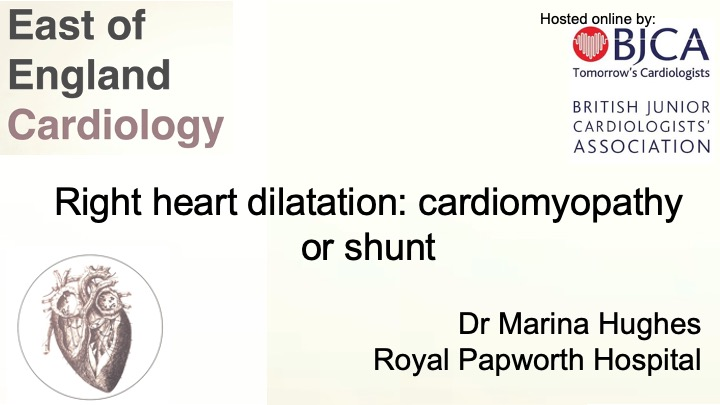 Right heart dilatation: cardiomyopathy or shunt?