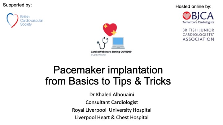 Pacemaker Implantation: Basics, Tips and Tricks